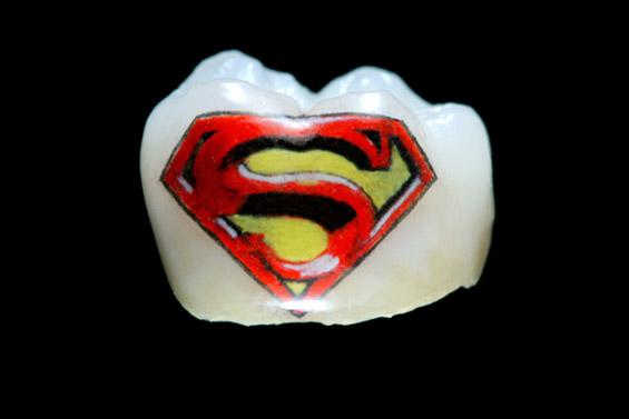 """""""Откачени"""" тетоважи на заби"""