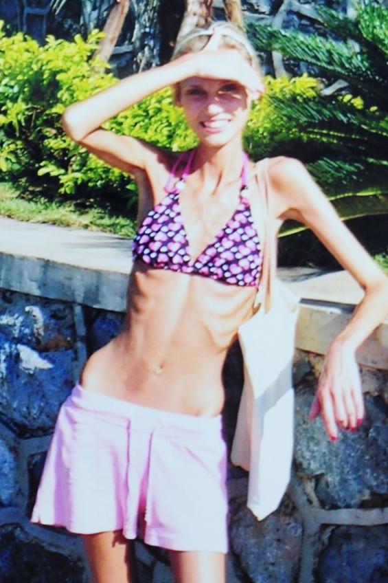 Мајка раскажува како бременоста ја излечила од анорексија