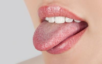 Промени на јазикот кои укажуваат на одредени заболувања