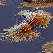 Клетки на рак под микроскоп