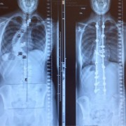 Лечење од сколиоза: пред и потоа
