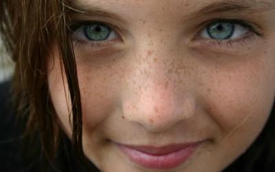 5 реченици кои луѓето со пеги на лицето постојано ги слушаат