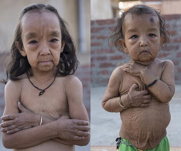 (1) Исклучителниот синдром Бенџамин Батон кој ги прави малите деца да изгледаат многу постаро