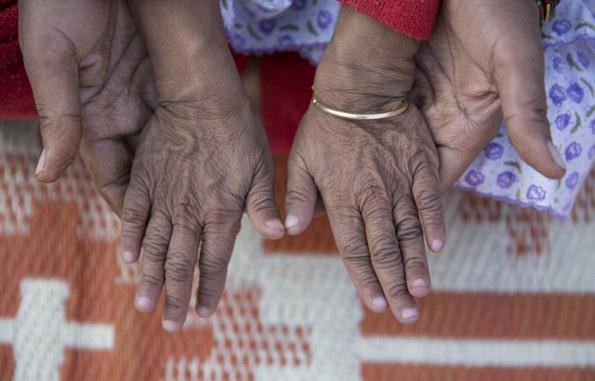 (11) Исклучителниот синдром Бенџамин Батон кој ги прави малите деца да изгледаат многу постаро