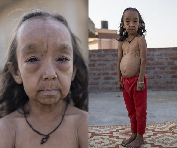 (2) Исклучителниот синдром Бенџамин Батон кој ги прави малите деца да изгледаат многу постаро