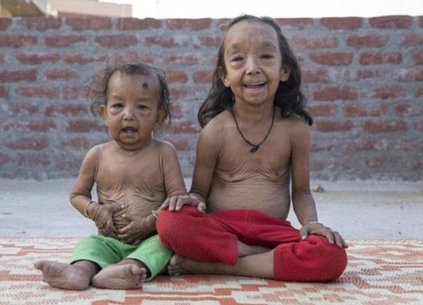 (3) Исклучителниот синдром Бенџамин Батон кој ги прави малите деца да изгледаат многу постаро