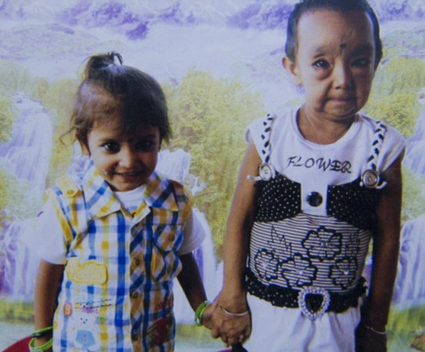 (9) Исклучителниот синдром Бенџамин Батон кој ги прави малите деца да изгледаат многу постаро
