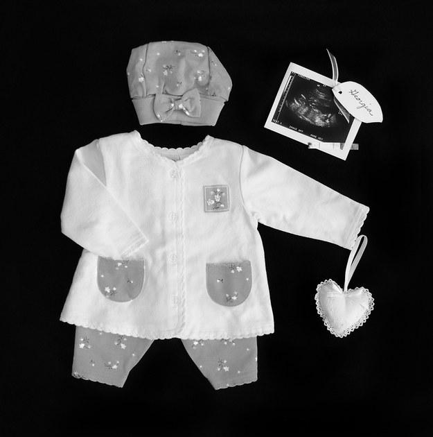 (1) Трогателна серија фотографии го портретира скршеното срце зад спонтаниот абортус