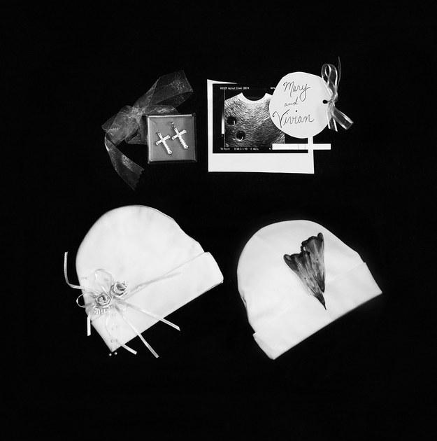 (6) Трогателна серија фотографии го портретира скршеното срце зад спонтаниот абортус