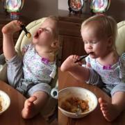 Девојче родено без раце учи како самото да се исхранува со помош на своите нозе