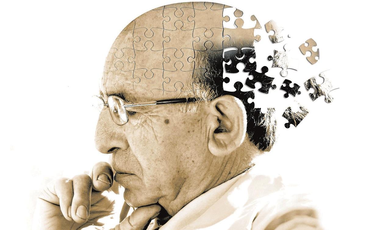 Научниците откриваат: Првиот симптом на Алцхајмерова болест не мора да биде губењето на памтењето