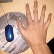 Може да користат само еден прст за да ракуваат со глувчето на компјутерот