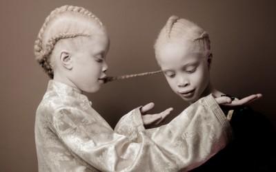 Погледнете ги овие необични близначки со волшебен изглед кои ќе ве остават без зборови