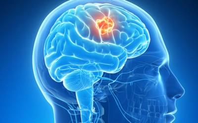 7 рани симптоми на рак кои 90% од луѓето ги игнорираат