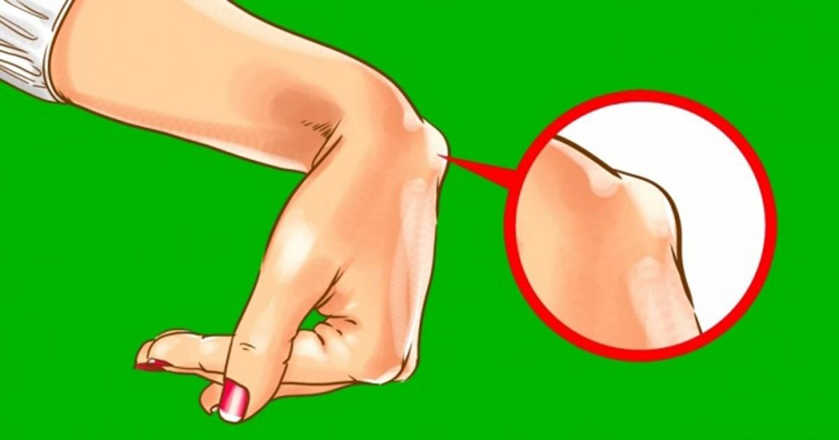 Зошто треба да се загрижите доколку имате израсток на рачниот зглоб?