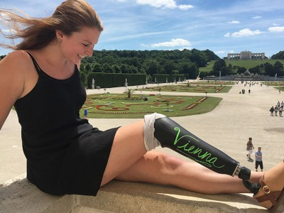 Девојка си ја претворила простетичката нога во табла за пишување и отишла на патување низ Европа