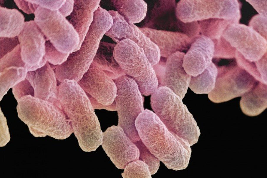 (1)5-bakterii-koi-navistina-mozhete-da-gi-zakachite-od-toaletite-kafepauza.mk