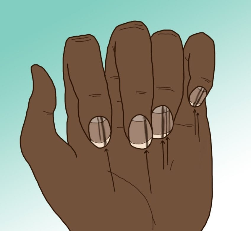 10 secrets that hide nails for your health