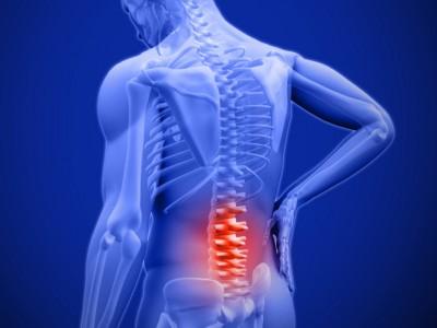 Дали ве боли грбот, но ниту една терапија не ви помага?