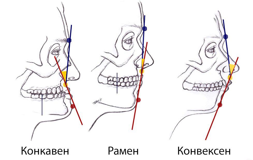 konveksen-ramen-ili-konkaven-kakov-e-vashiot-profil-i-shto-vi-otkriva-toa-za-karakterot